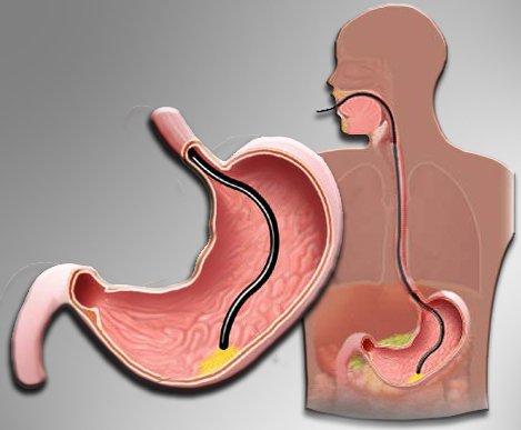 Fibrogastroskopia