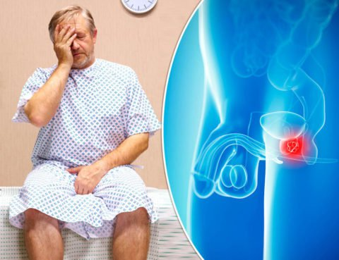 Rak-prostaty-2