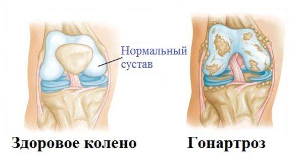 gonartroz-3-stepeni-kolennogo-sustava-lechenie