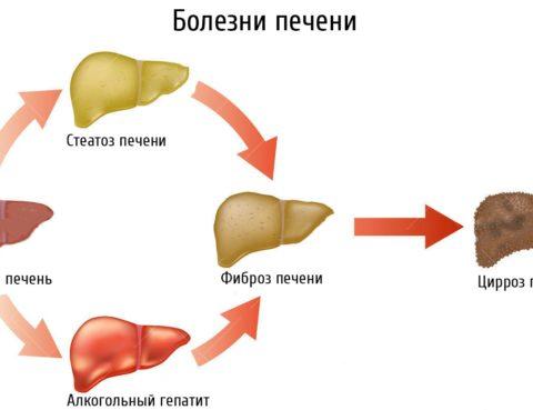 Kakie-simptomy-i-lechenie-steatoza-pecheni-v-domashnih-usloviyah-3